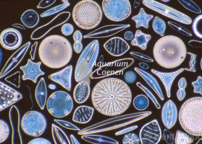 Light micrograph of radial and pennate diatoms under darkfield illumination